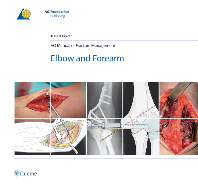 AO Manual of Fracture Management - Elbow & Forearm