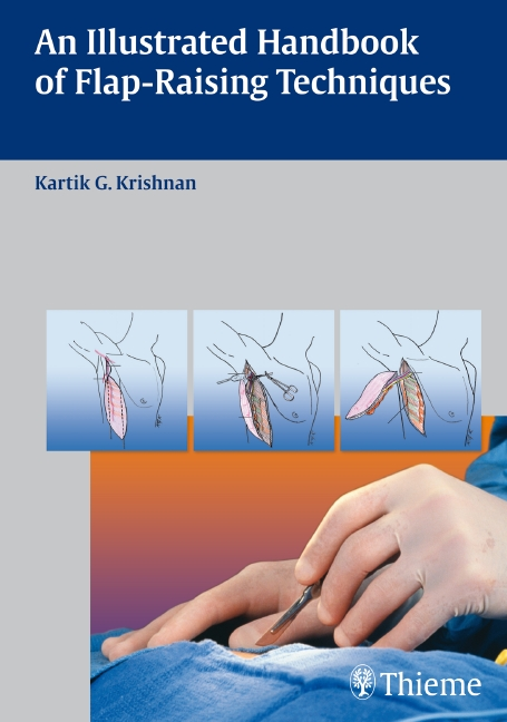 An Illustrated Handbook of Flap-Raising Techniques