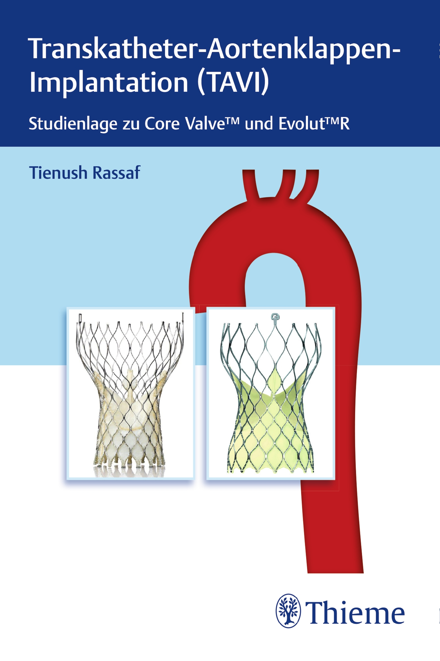 Transkatheter Aortenklappenimplantation (TAVI)