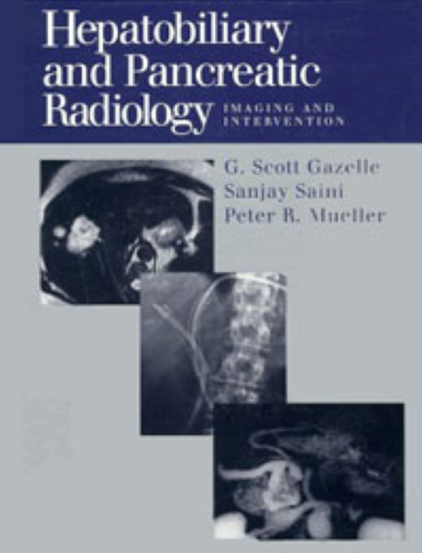 Hepatobiliary and Pancreatic Radiology