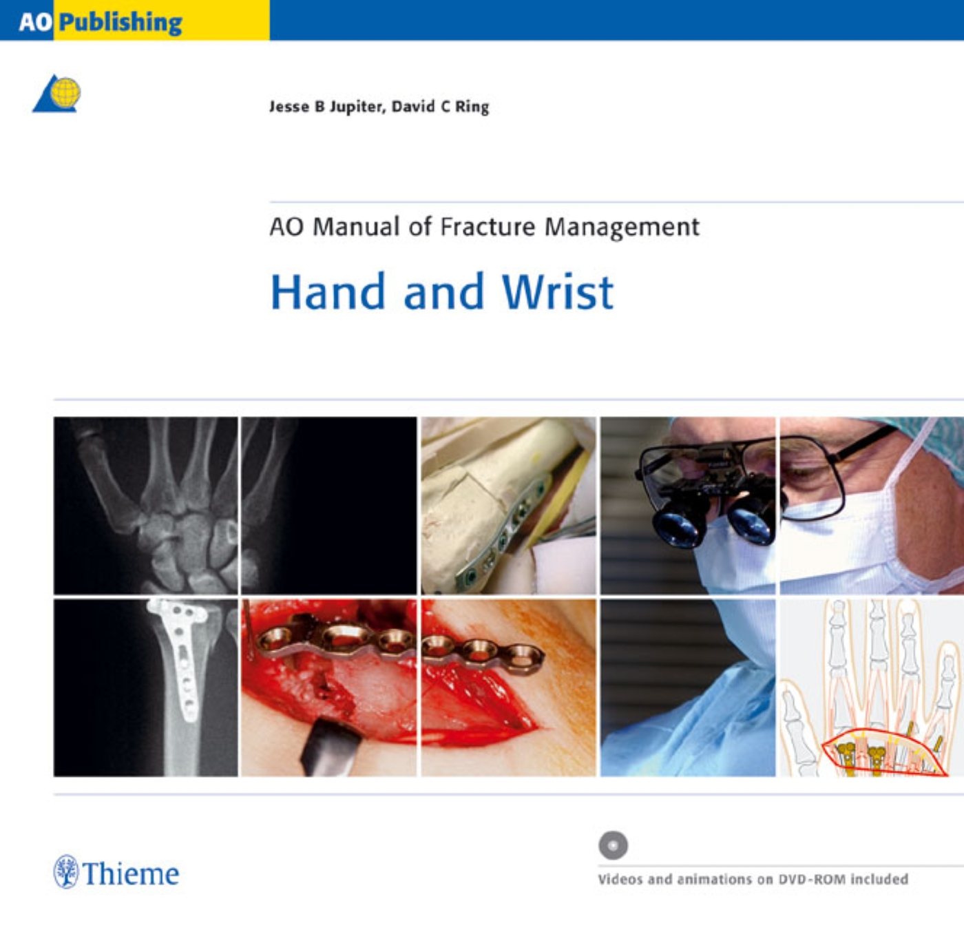 AO Manual of Fracture Management - Hand and Wrist