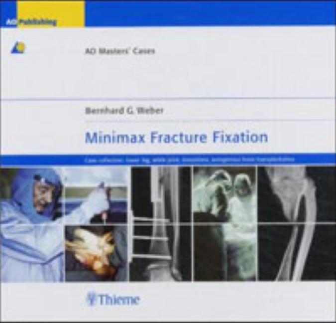 Minimax Fracture Fixation
