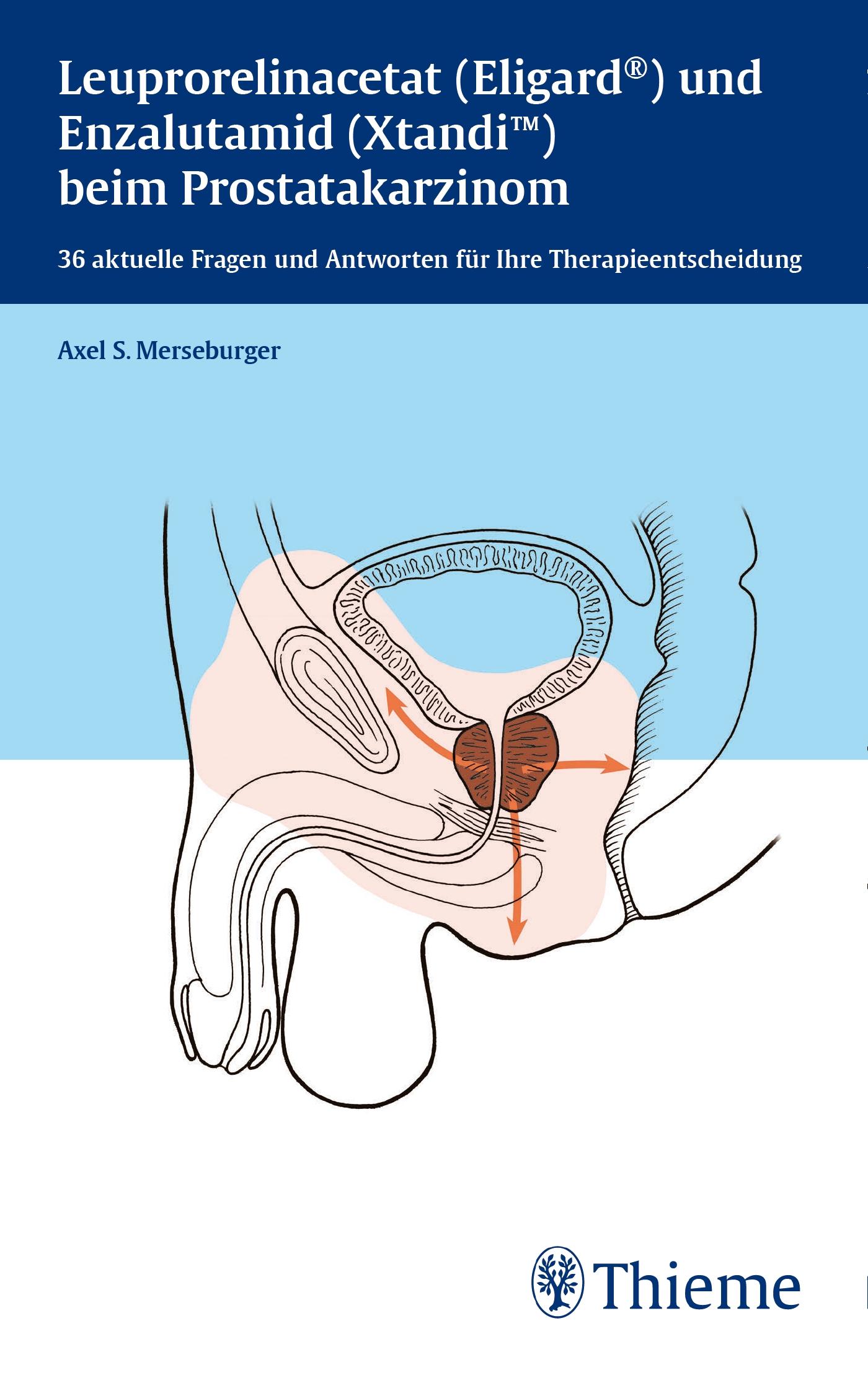 Leuprorelinacetat (Eligard®) und Enzalutamid (Xtandi) beim Prostatakarzinom