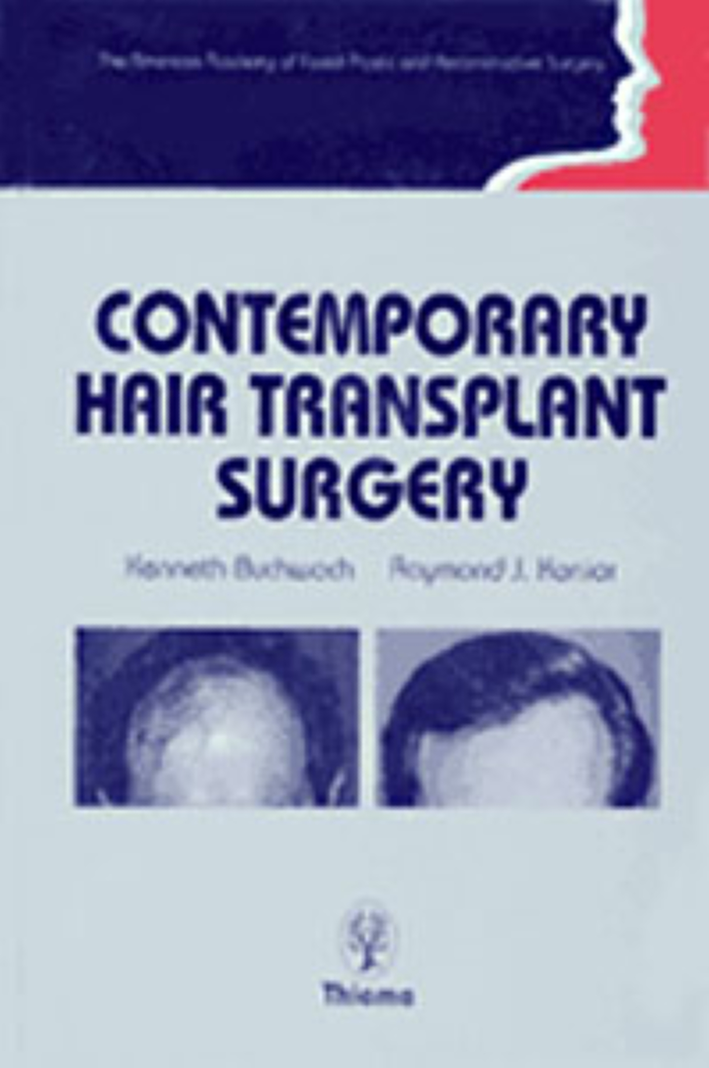 Contemporary Hair Transplant Surgery