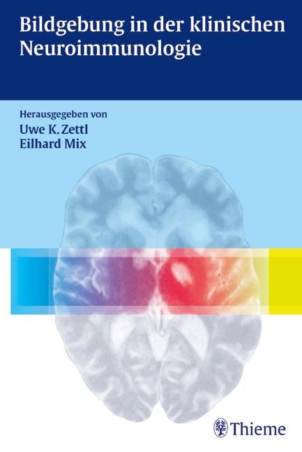 Bildgebung in der klinischen Neuroimmunologie
