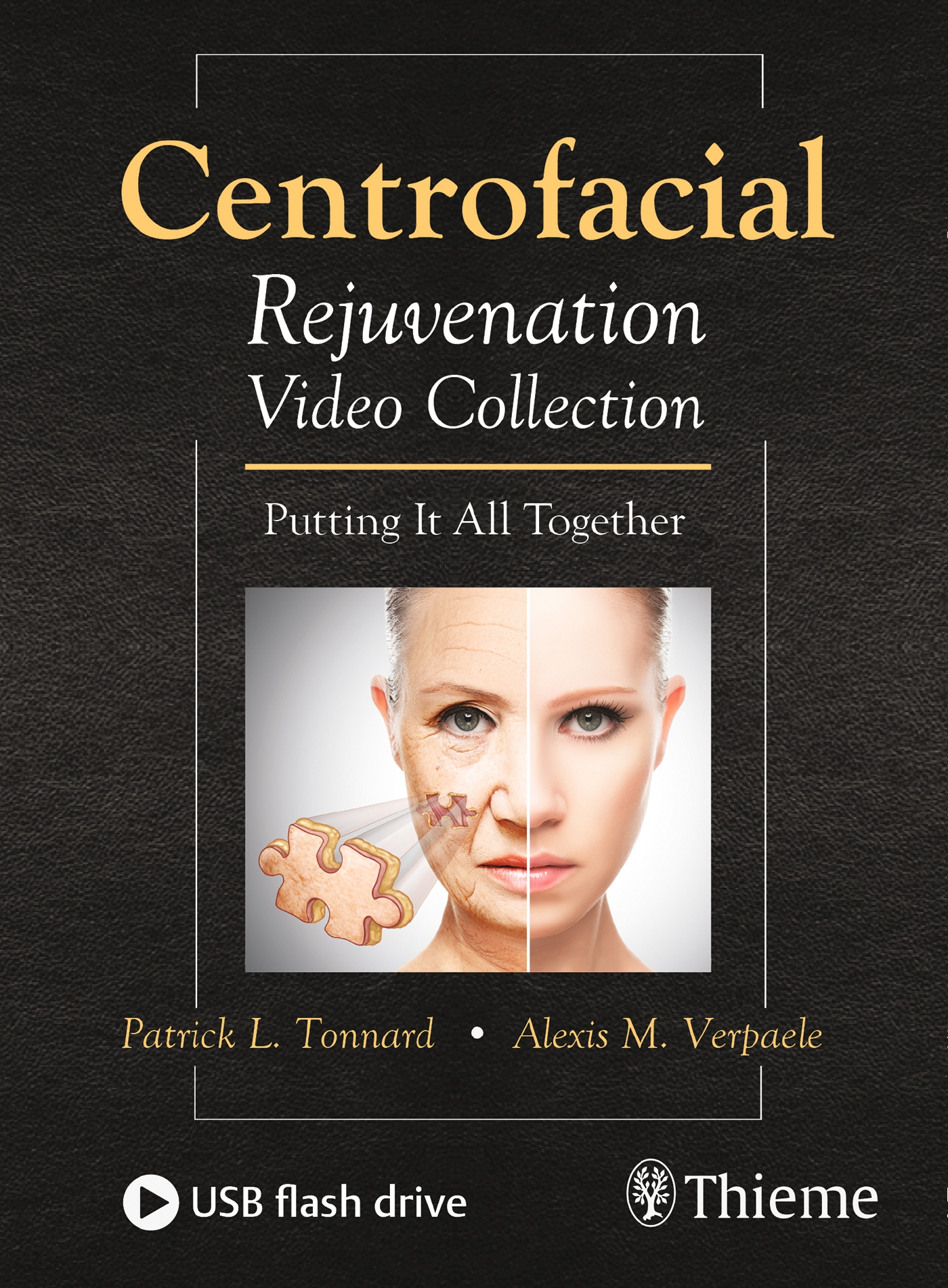 Centrofacial Rejuvenation Video Collection