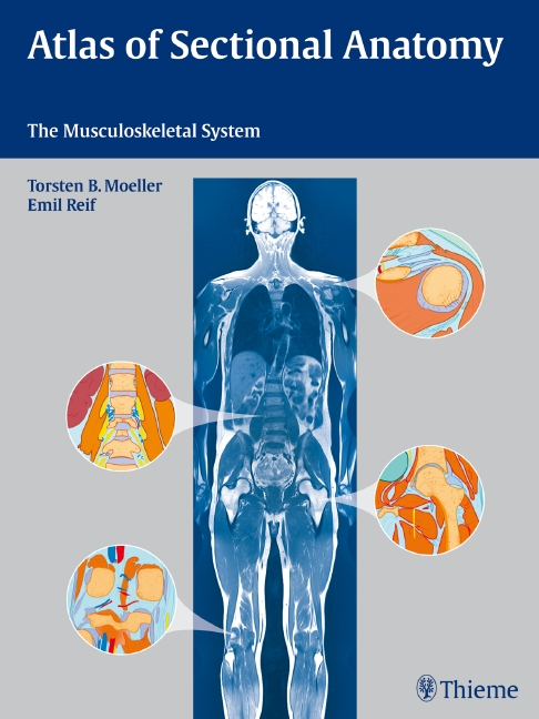 Atlas of Sectional Anatomy