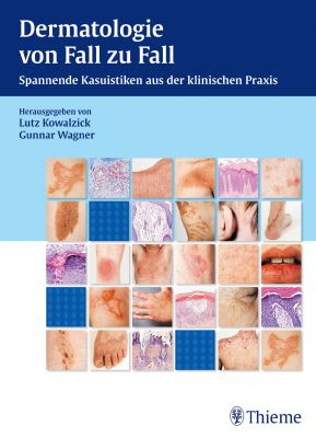 Dermatologie von Fall zu Fall