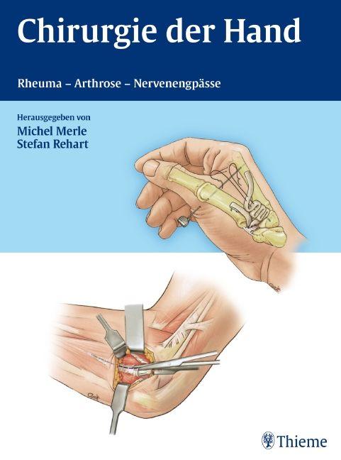 Chirurgie der Hand
