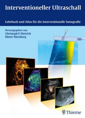 Interventioneller Ultraschall