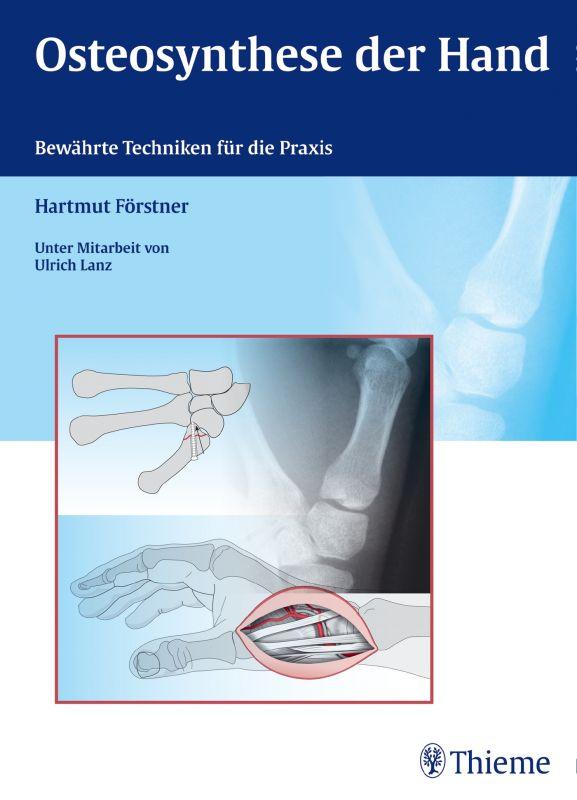 Osteosynthese der Hand